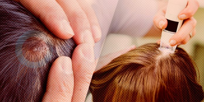 Get treated Scalp Acne in the best salons in Delhi/NCR by Zoylee
